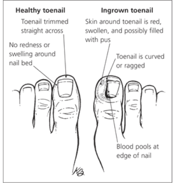 Ingrowing toenail