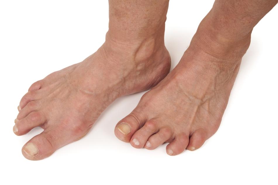 Rheumatoid Foot